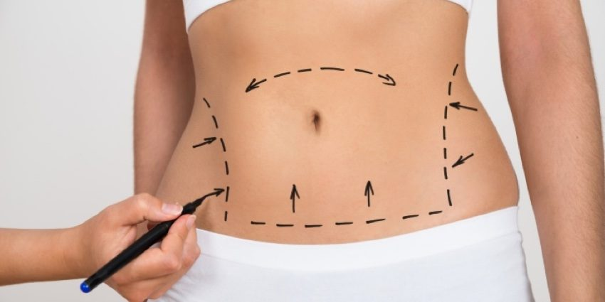 Article-abdominoplastie