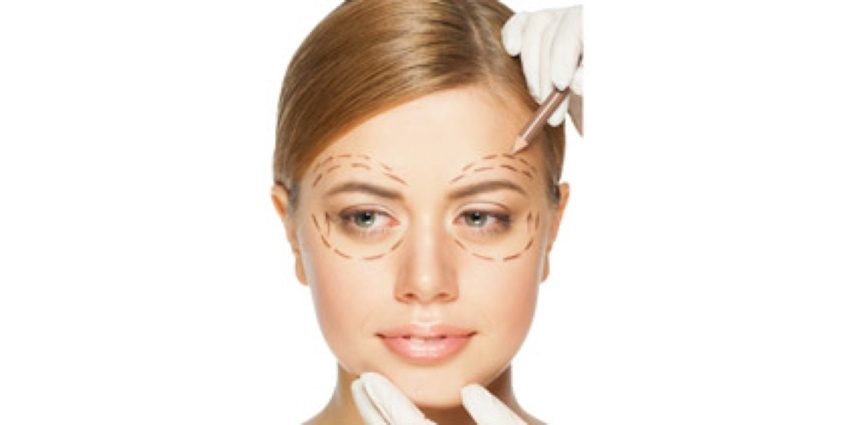 Blepharoplastie-article